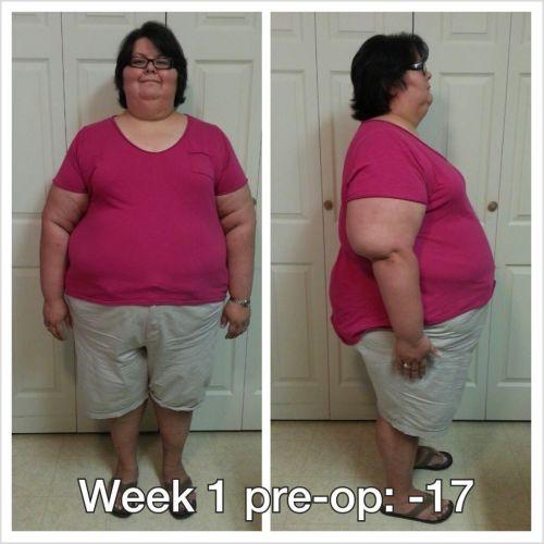 week1preop062313