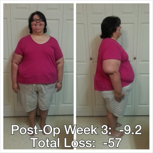 postopweek3-072813