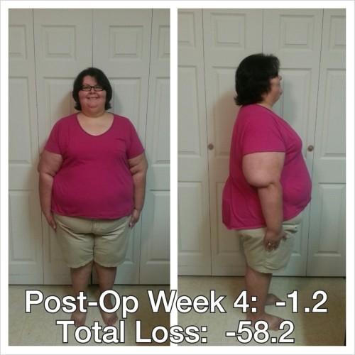 postopweek4-080413