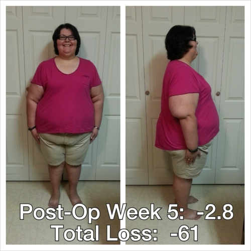 postopweek5-081113