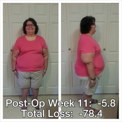 postopweek11-092213